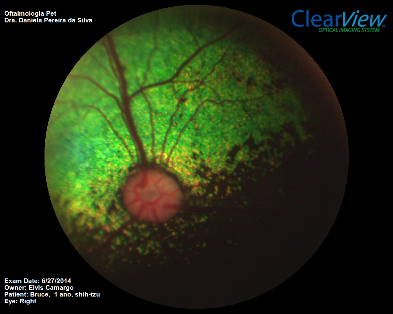 Investigation of fellow eye of unilateral retinal detachment in Shih-Tzu