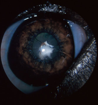 Methods for Achieving Adequate Pupil Size in Cataract Surgery