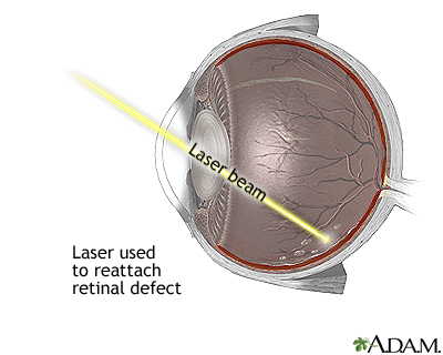 The use of lasers in veterinary ophthalmology