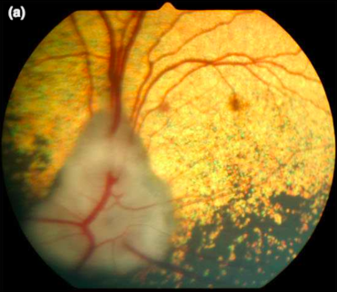 Punctate retinal hemorrhage and its relation to ocular and systemic disease in dogs