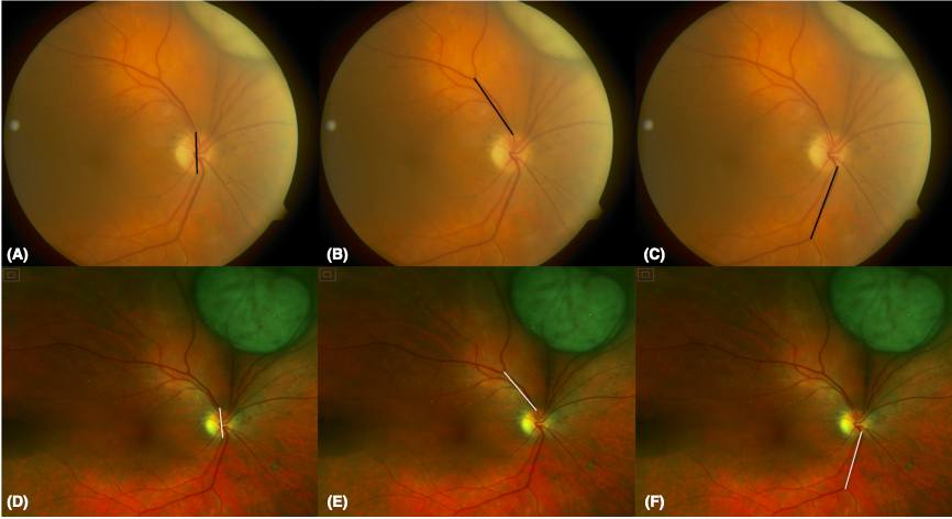 Ultra-widefield fundus photography for radiation therapy planning of ocular tumours.