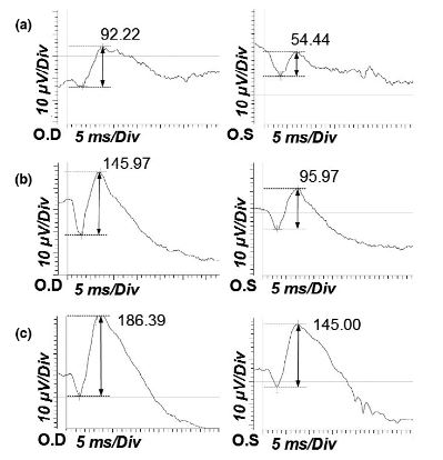 Electroretinographic changes after intravenous lipid emulsion therapy in a dog and a foal with ivermectin toxicosis