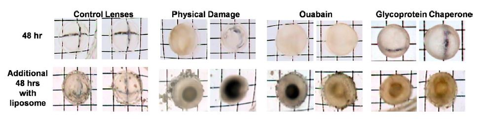 Failure of Oxysterols Such as Lanosterol to Restore Lens Clarity from Cataracts