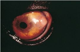 Ocular Manifestations of leishmaniasis in dogs: 105 cases (1993-1998)