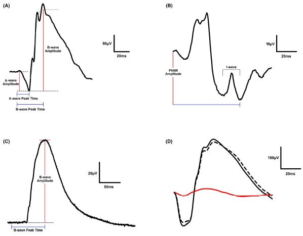 A review of electroretinography waveforms
