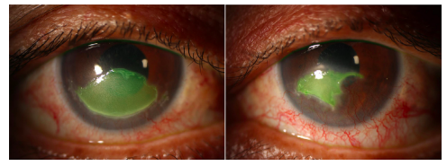 Topical insulin for neurotrophic corneal ulcers